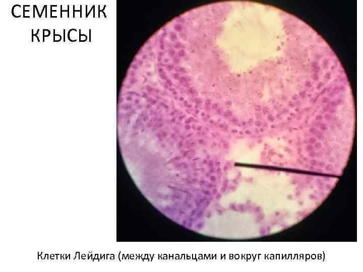 СЕМЕННИК КРЫСЫ Клетки Леи дига (между канальцами и вокруг капилляров)