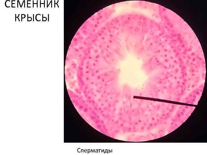 СЕМЕННИК КРЫСЫ Сперматиды