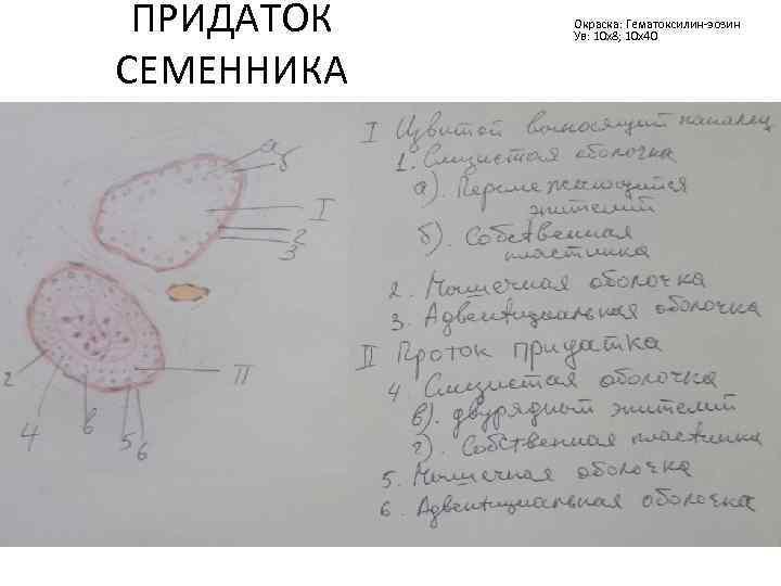 ПРИДАТОК СЕМЕННИКА Окраска: Гематоксилин-эозин Ув: 10 х8; 10 х40