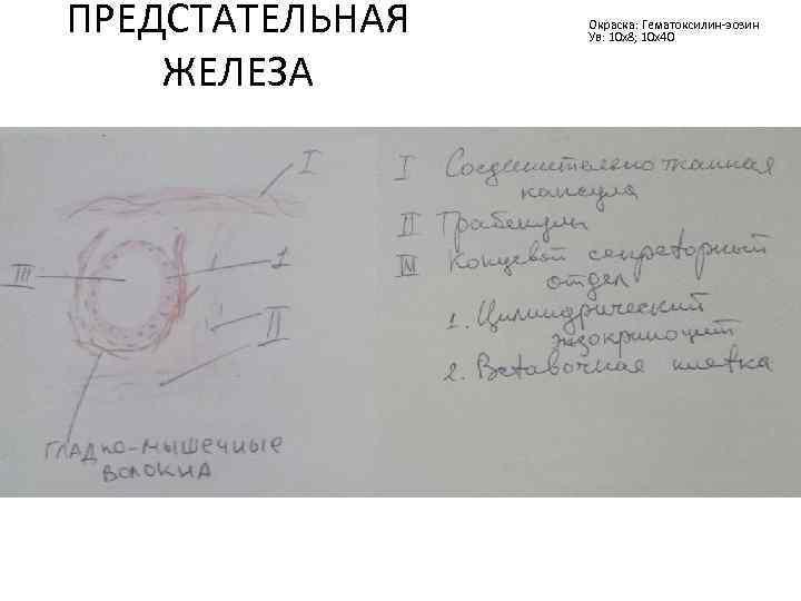ПРЕДСТАТЕЛЬНАЯ ЖЕЛЕЗА Окраска: Гематоксилин-эозин Ув: 10 х8; 10 х40