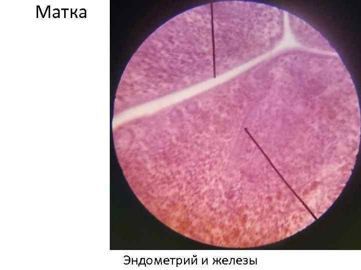 Матка Эндометрии и железы