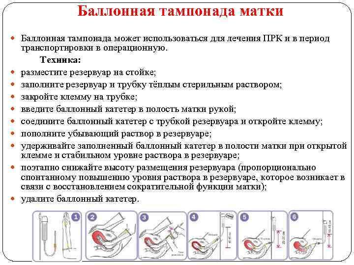 Баллонная тампонада матки Баллонная тампонада может использоваться для лечения ПРК и в период транспортировки