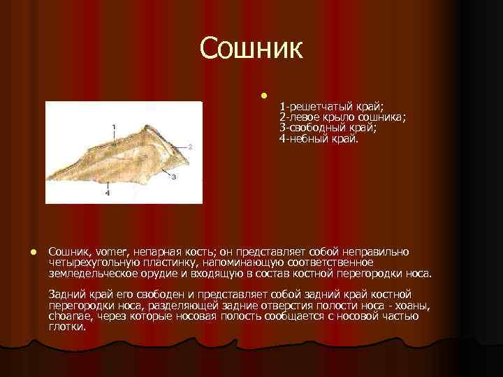Сошник l l 1 -решетчатый край; 2 -левое крыло сошника; 3 -свободный край; 4