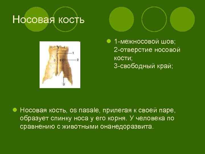 Носовая кость l 1 -межносовой шов; 2 -отверстие носовой кости; 3 -свободный край; l