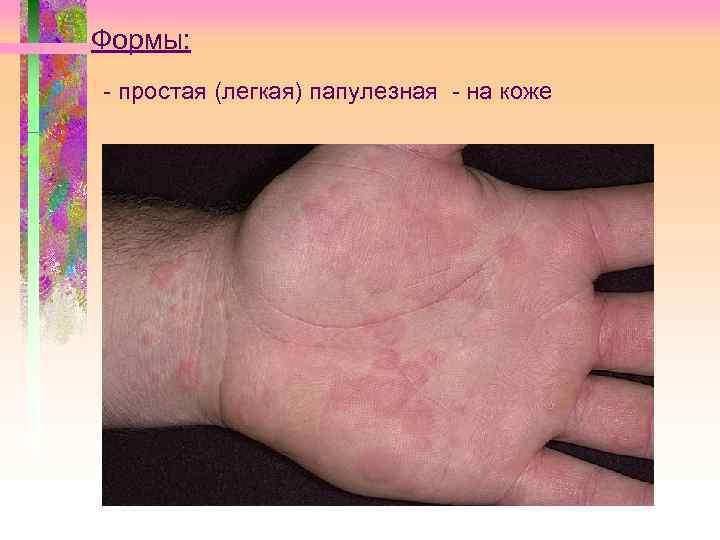 Формы: - простая (легкая) папулезная - на коже