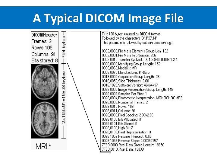 A Typical DICOM Image File