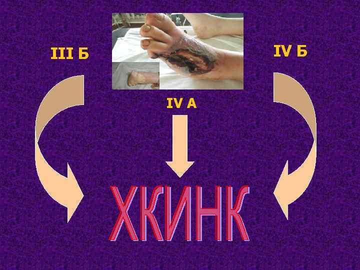 IV Б III Б IV A