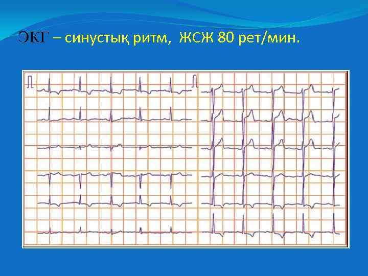 ЭКГ – синустық ритм, ЖСЖ 80 рет/мин.