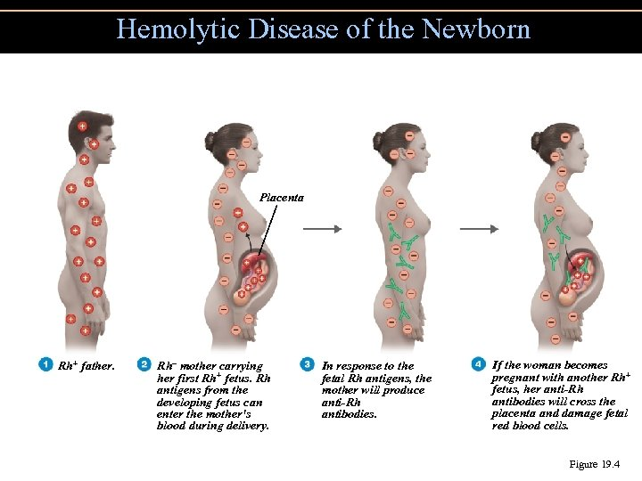 Hemolytic Disease of the Newborn Placenta Rh+ father. Rh– mother carrying her first Rh+