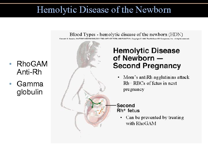 Hemolytic Disease of the Newborn • Rho. GAM Anti-Rh • Gamma globulin