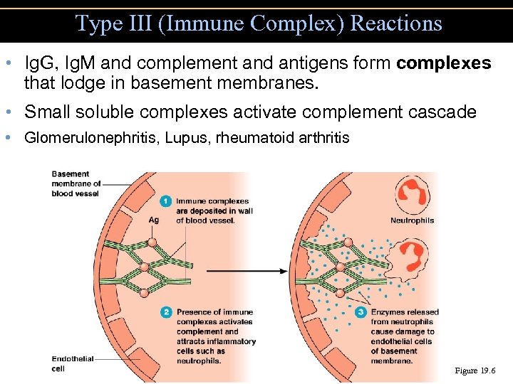 Type III (Immune Complex) Reactions • Ig. G, Ig. M and complement and antigens