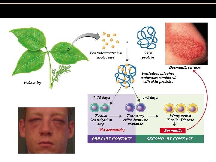 Figure 19. 7 The development of an allergy (allergic contact dermatitis) to catechols from