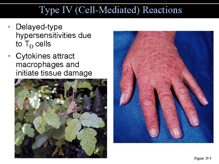 Type IV (Cell-Mediated) Reactions • Delayed-type hypersensitivities due to TD cells • Cytokines attract
