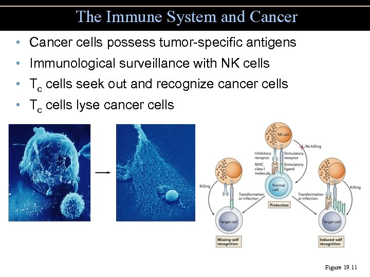 The Immune System and Cancer • Cancer cells possess tumor-specific antigens • Immunological surveillance