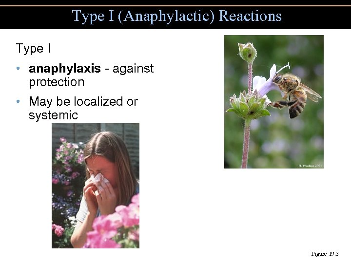 Type I (Anaphylactic) Reactions Type I • anaphylaxis - against protection • May be