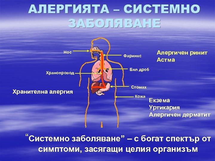 АЛЕРГИЯТА – СИСТЕМНО ЗАБОЛЯВАНЕ Нос Хранопровод Хранителна алергия Алергичен ринит Астма Фаринкс Бял дроб