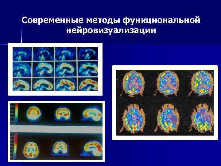 Современные методы функциональной нейровизуализации