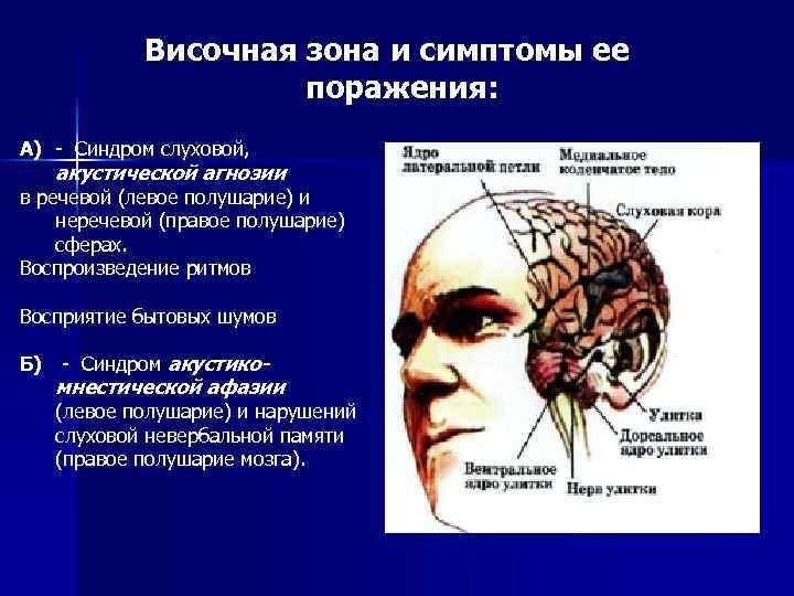 Височная зона и симптомы ее поражения: А) - Синдром слуховой, акустической агнозии в речевой