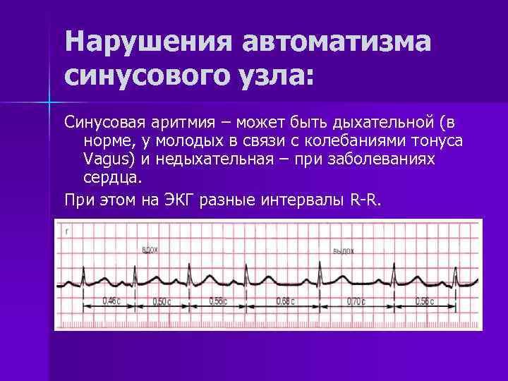 Синусовый ритм сердца норма у беременных 79