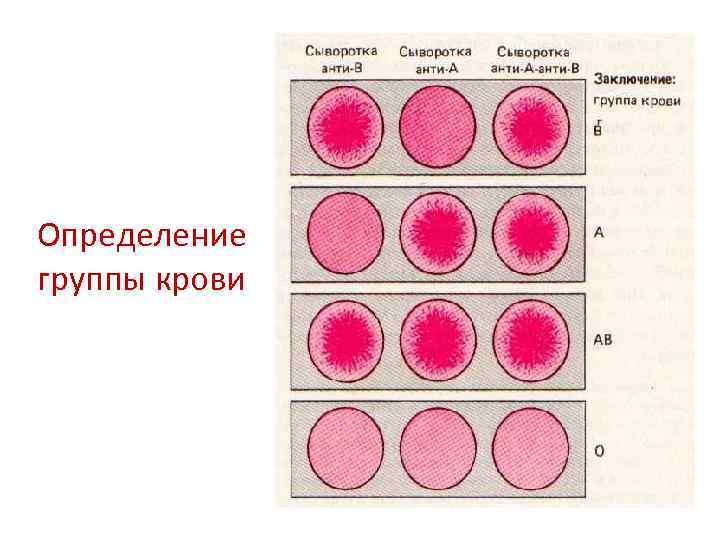 Определение группы крови