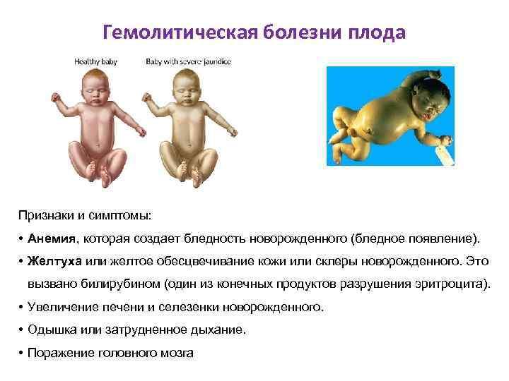 Гемолитическая болезни плода Признаки и симптомы: • Анемия, которая создает бледность новорожденного (бледное появление).