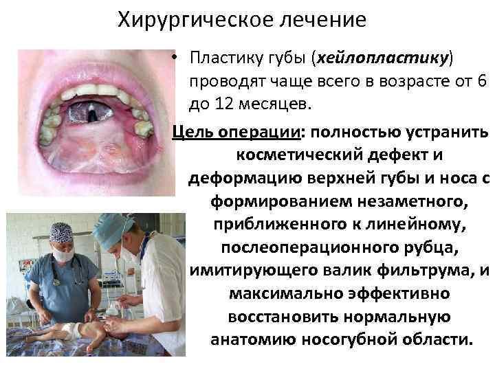 Хирургическое лечение • Пластику губы (хейлопластику) проводят чаще всего в возрасте от 6 до