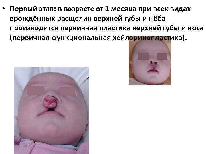 • Первый этап: в возрасте от 1 месяца при всех видах врождённых расщелин