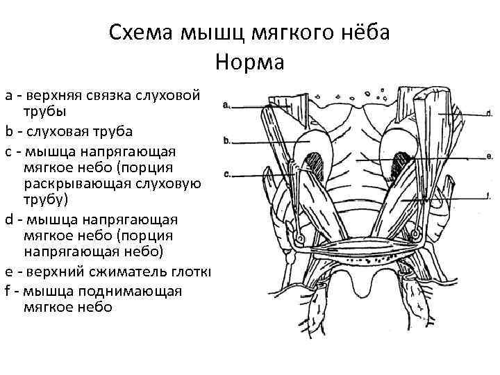 Схема мышц мягкого нёба Норма a - верхняя связка слуховой трубы b - слуховая