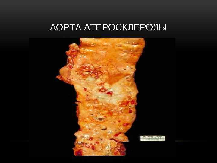 АОРТА АТЕРОСКЛЕРОЗЫ
