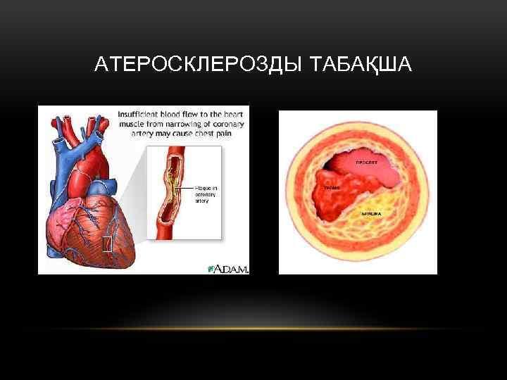 АТЕРОСКЛЕРОЗДЫ ТАБАҚША