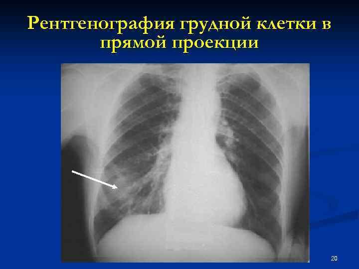 Рентгенография грудной клетки в прямой проекции 20
