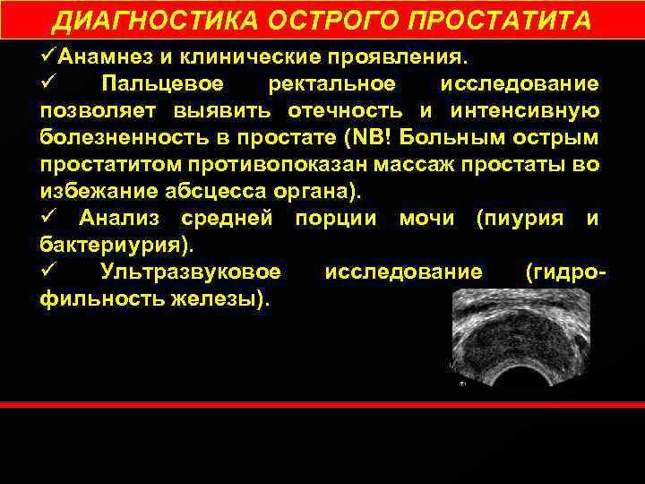 диагнозы простатита