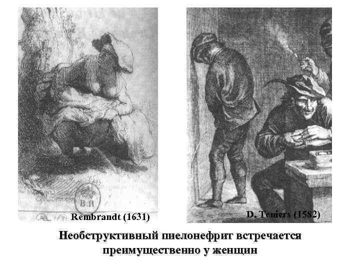 Rembrandt (1631) D. Teniers (1582) Необструктивный пиелонефрит встречается преимущественно у женщин