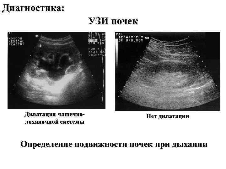 Диагностика: УЗИ почек Дилатация чашечнолоханочной системы Нет дилатации Определение подвижности почек при дыхании
