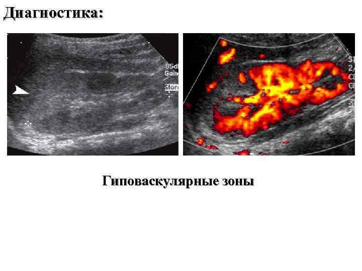 Диагностика: Гиповаскулярные зоны