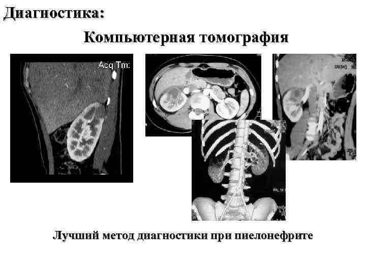 Диагностика: Компьютерная томография Лучший метод диагностики при пиелонефрите