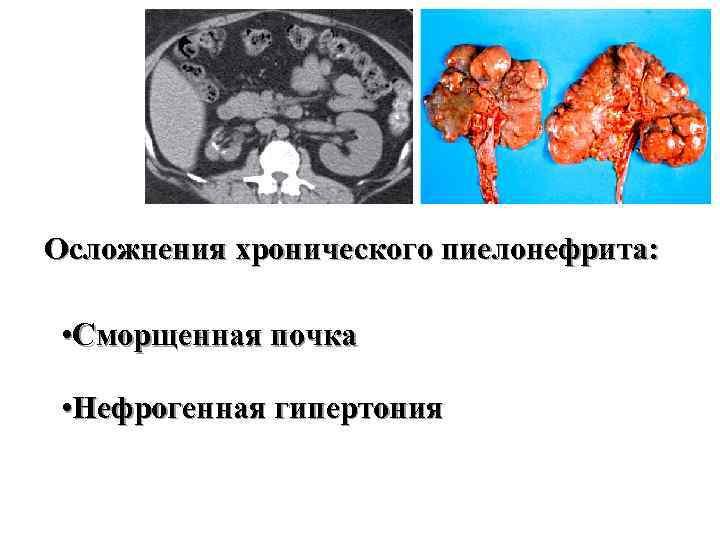 Осложнения хронического пиелонефрита: • Сморщенная почка • Нефрогенная гипертония