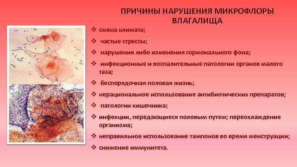 Микрофлора у женщин картинки