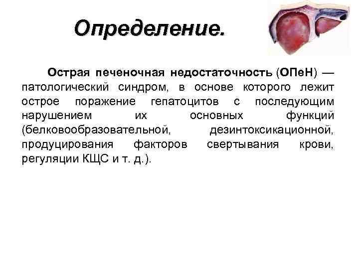 Определение. Острая печеночная недостаточность (ОПе. Н) — патологический синдром, в основе которого лежит острое