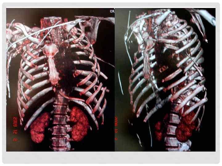 разрыв пристеночной плевры при переломе ребер