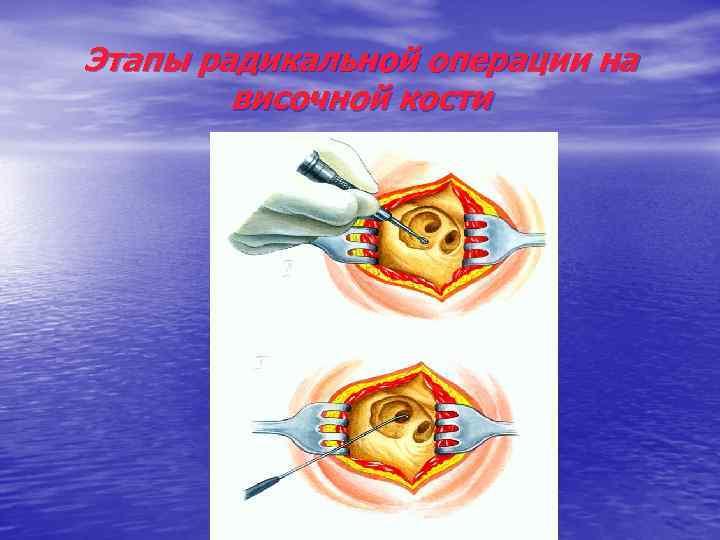 Этапы радикальной операции на височной кости