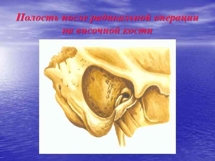Полость после радикальной операции на височной кости