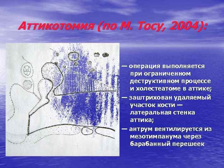 Аттикотомия (по М. Тосу, 2004): — операция выполняется при ограниченном деструктивном процессе и холестеатоме