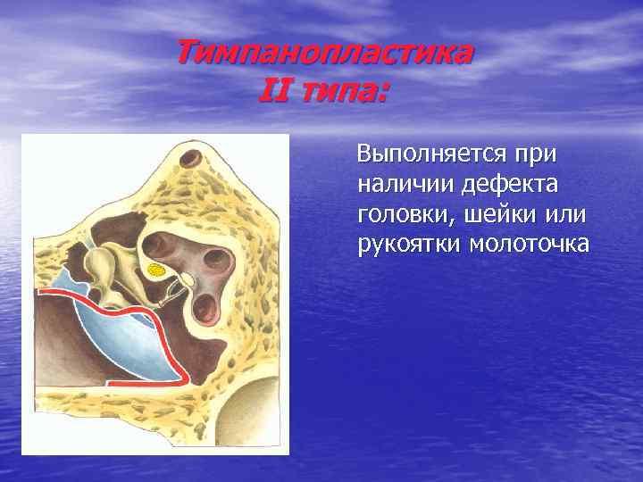 Тимпанопластика II типа: Выполняется при наличии дефекта головки, шейки или рукоятки молоточка