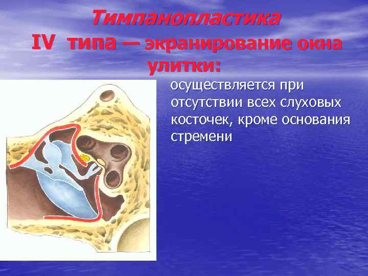 Тимпанопластика IV типа — экранирование окна улитки: осуществляется при отсутствии всех слуховых косточек, кроме