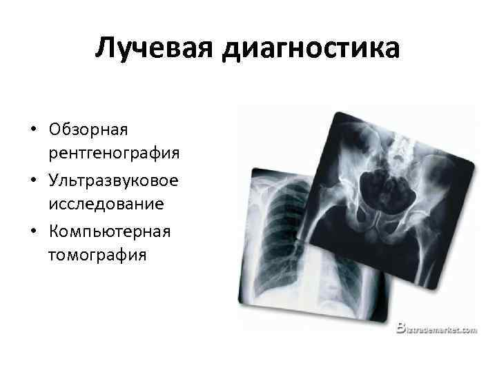 Лучевая диагностика • Обзорная рентгенография • Ультразвуковое исследование • Компьютерная томография