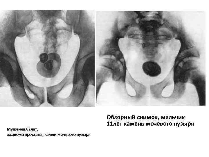 Мужчина, 62 лет, аденома простаты, камни мочевого пузыря Обзорный снимок, мальчик 11 лет камень