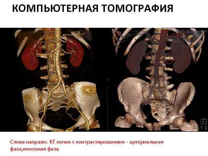 КОМПЬЮТЕРНАЯ ТОМОГРАФИЯ Слева направо: КТ почек с контрастированием - артериальная фаза, венозная фаза
