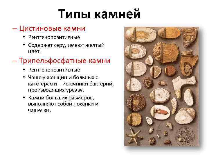 Типы камней – Цистиновые камни • Рентгенопозитивные • Содержат серу, имеют желтый цвет. –