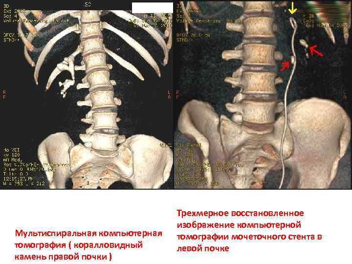 Мультиспиральная компьютерная томография ( коралловидный камень правой почки ) Трехмерное восстановленное изображение компьютерной томографии